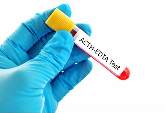 ACTH EDTA test